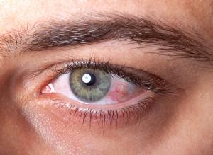 Nie lekceważ zespołu suchego oka!